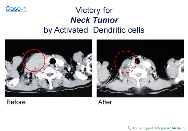 Case-1 Victory for Neck Tumor by Activated Dendritic cells