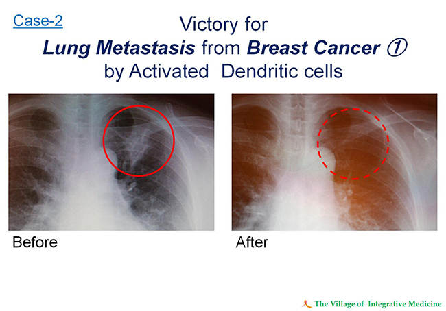 Case-2 Victory for Lung Metastasis from Breast Cancer1 by Activated Dendritic cells