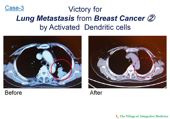 Case-3 Victory for Lung Metastasis from Breast Cancer2 by Activated Dendritic cells